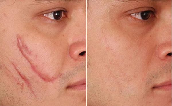 Kem trị sẹo Gentacin của Nhật giúp làm mờ cả vết sẹo lâu năm