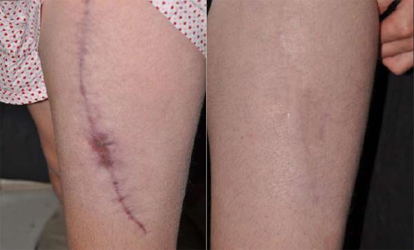 Vết sẹo do ngã xe cũng mờ đi nhanh chóng khi dùng kem trị sẹo