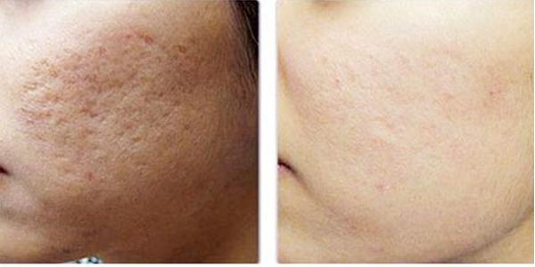 Không chỉ trị sẹo ở cơ thể, kem trị sẹo của Nhật còn giúp trị sẹo rỗ rất hiệu quả