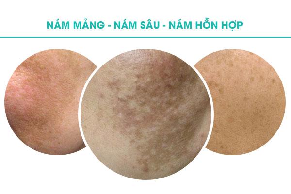 3 cấp độ nám da mặt mà bạn cần nhận biết để điều trị cho hiệu quả