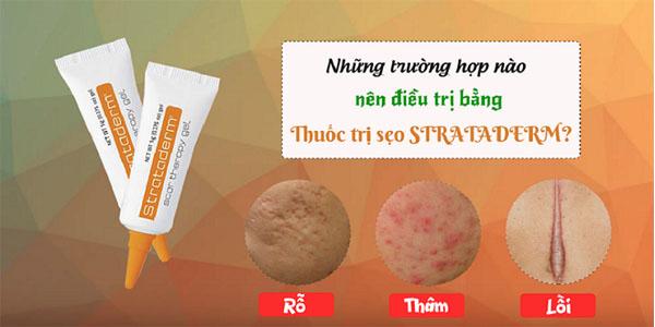 Gel Ho Tro Cai Thien Seo Lau Nam Seo Loi Strataderm Thuy Si 2