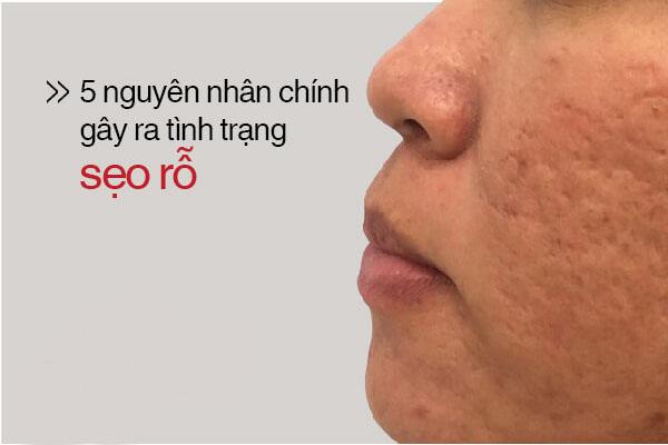 Nguyen nhan hinh thanh seo ro do thuy dau.