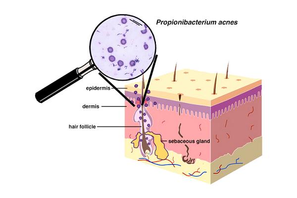 Propionibacterium acnes P