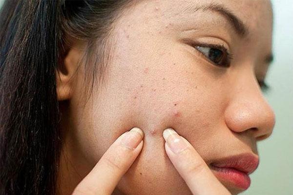 Thói quen nặn mụn có thê gây ra sẹo rỗ