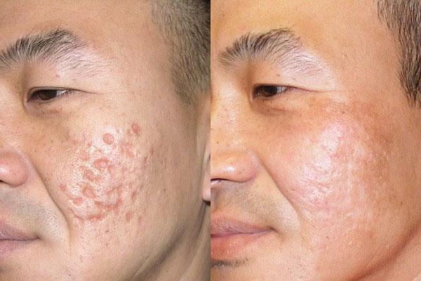 Hiệu quả sau 1 tháng sử dụng kem trị sẹo rỗ