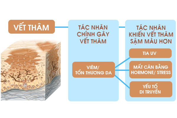 Nguyen nhan khien cho vet tham cang ngay cang dam mau hon