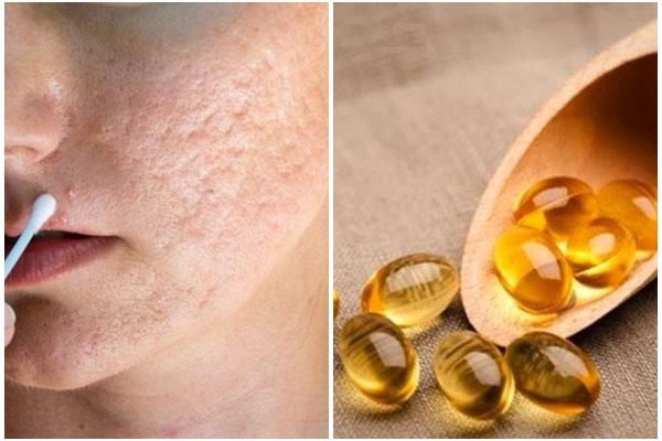 Vitamin E là một chất giúp tái tạo và phục hồi làn da
