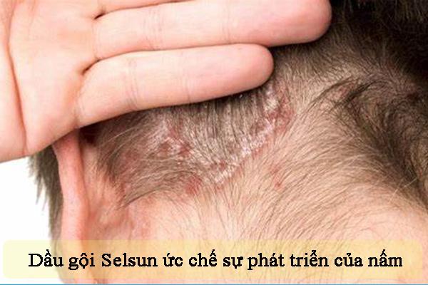 Dầu gội Selsun ức chế và tiêu diệt tế bào nấm