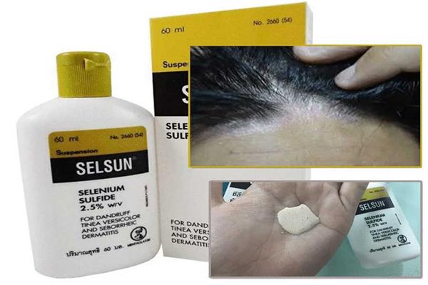 Dầu gội Selsun đặc trị nấm da đầu hiệu quả