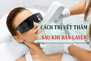Chia sẻ cách trị vết thâm sau khi bắn laser